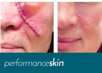 effective scar creams performanceskin